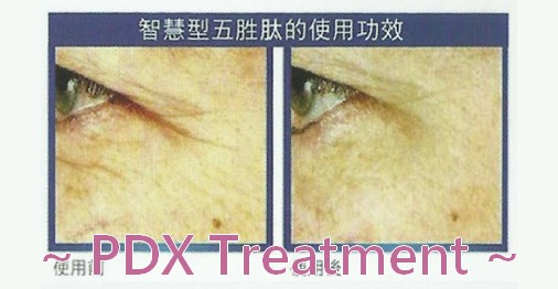 http://oxygen-beauty.com/files/PDX%20Treatment%20%E9%80%A3%E7%B5%90%E5%9C%96.jpg