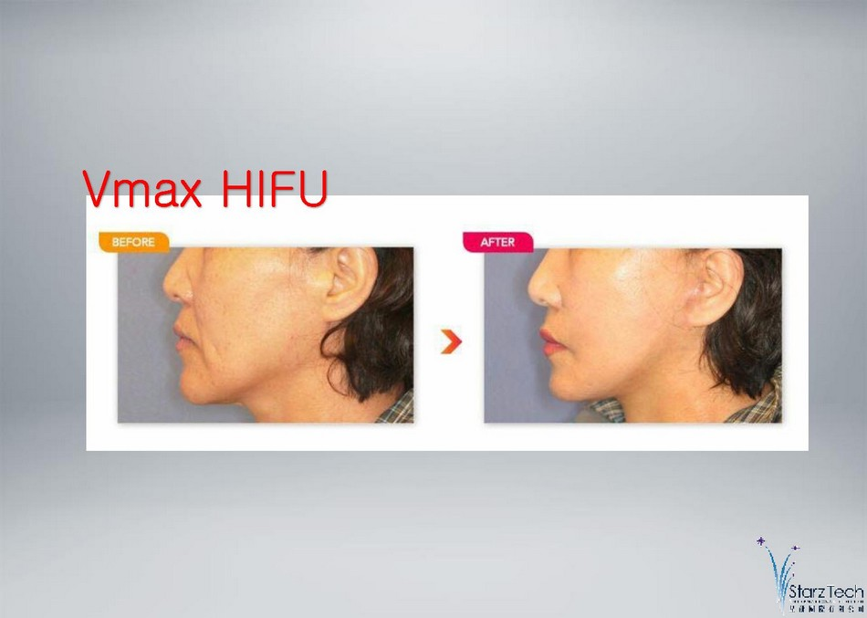 http://oxygen-beauty.com/files/V-MAX%20PRESENTATION-page-007.jpg