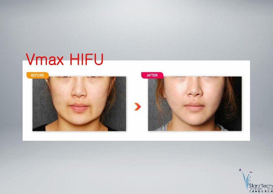 http://oxygen-beauty.com/files/V-MAX%20PRESENTATION-page-010.jpg